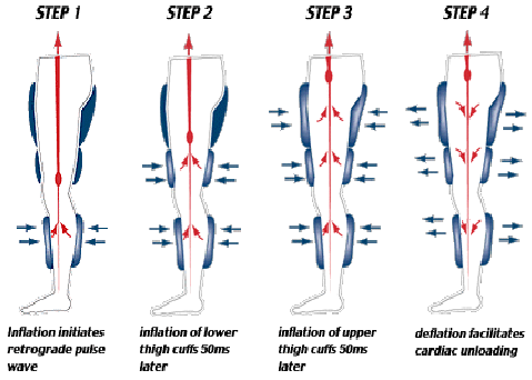 Image showing steps in EECP treatment