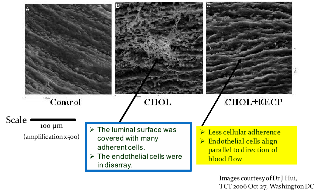Images of effect to blood vessel endothelial lining